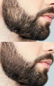 Fasen van het gebruik van de Derma-roller met baard