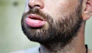 baardolie-allergische reactie