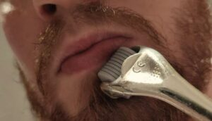 man dermarolling zijn baard gebied