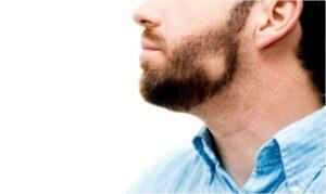 man met alopecia op zijn baard
