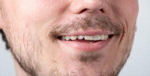 kale plekken baard