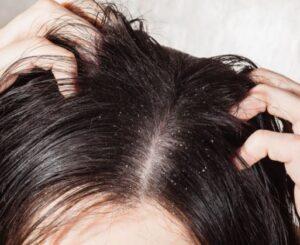 wat te doen tegen vet haar